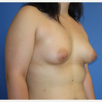 18-24 year old woman treated with Inspira Breast Implants (360cc) before 3262630