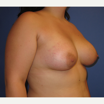 18-24 year old woman treated with Inspira Breast Implants (360cc) after 3262630