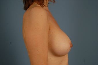 Breast Augmentation- Silicone Implants after 695856