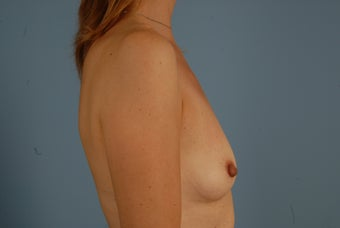 Breast Augmentation- Silicone Implants before 695856