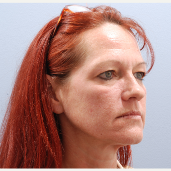 45-54 year old woman treated with Facelift before 3590194
