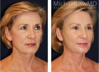 Full Facial Rejuvenation before 348508