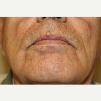 75 and up year old man treated with Mole Removal before 3664100