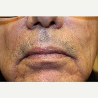 75 and up year old man treated with Mole Removal after 3664100