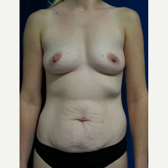25-34 year old woman treated with Breast Augmentation before 2042986