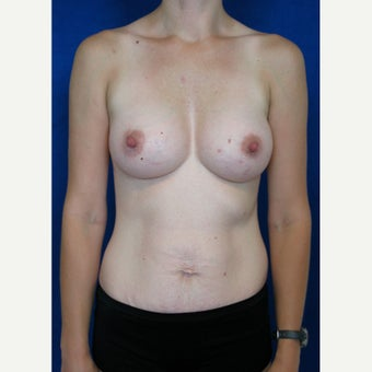 25-34 year old woman treated with Breast Augmentation after 2042986