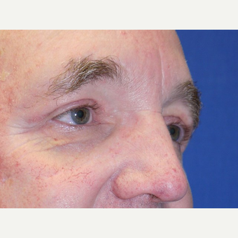 Eyelid Surgery after 3743978