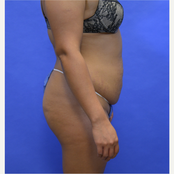 45-54 year old woman treated with Tummy Tuck before 3580059