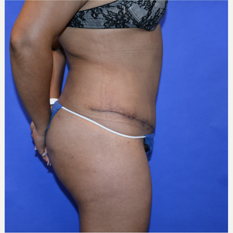 45-54 year old woman treated with Tummy Tuck after 3580059