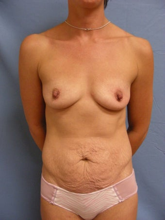 32 year old mother with sagging breasts and loose abdomen before 1016088