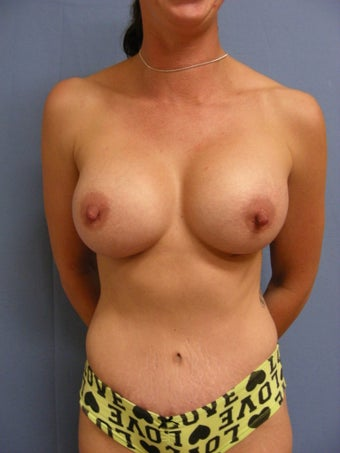 32 year old mother with sagging breasts and loose abdomen after 1016088