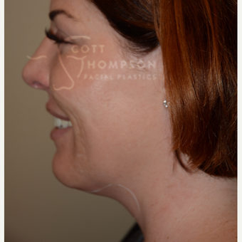 35-44 year old woman treated with Kybella before 3456218