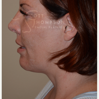 35-44 year old woman treated with Kybella after 3456218