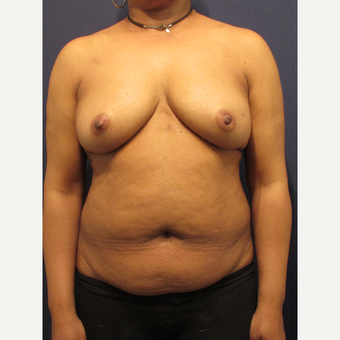 55-64 year old woman treated with Breast Reconstruction before 3418583