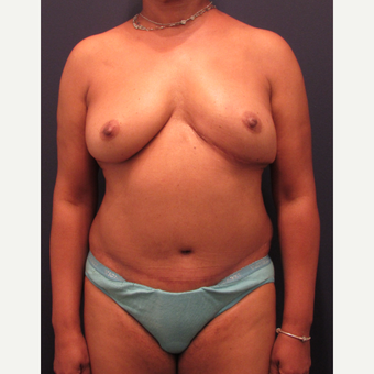 55-64 year old woman treated with Breast Reconstruction after 3418583