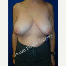 45-54 year old woman treated with Breast Reduction before 3006662