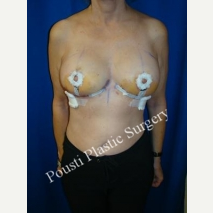 45-54 year old woman treated with Breast Reduction after 3006662