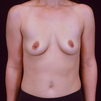 25-34 year old woman treated with Breast Augmentation before 3125530