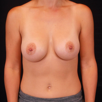 25-34 year old woman treated with Breast Augmentation after 3125530