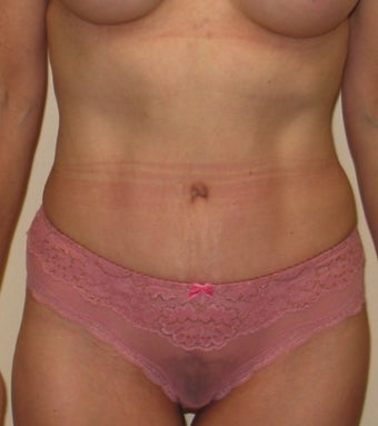 Tummy Tuck after 1219918