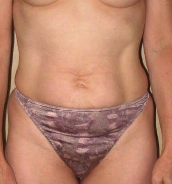 Tummy Tuck before 1219918