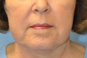 77 Year Old Treated for Unacceptable Cosmetic Appearance of Face after 1088801