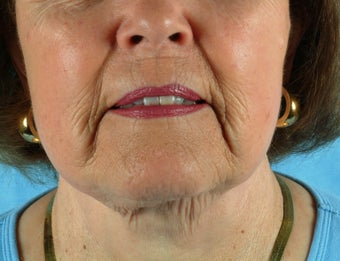 77 Year Old Treated for Unacceptable Cosmetic Appearance of Face before 1088801