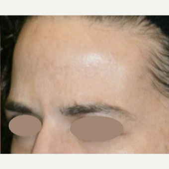 35-44 year old woman treated with Botox after 3163174