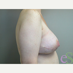 Breast Implant Revision after 3373374