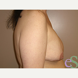 Breast Implant Revision before 3373374