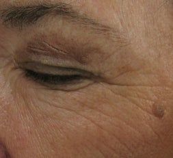 Crows feet and eye wrinkles treated with 1 treatment of Lux 1540 Fractional Laser before 52903