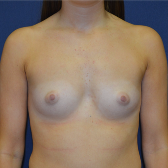 18-24 year old woman treated with Breast Augmentation before 3092326