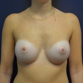 18-24 year old woman treated with Breast Augmentation after 3092326