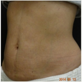 Thermage Skin Tightening - Stomach after 2107851