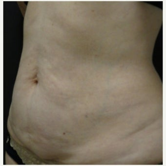 Thermage Skin Tightening - Stomach