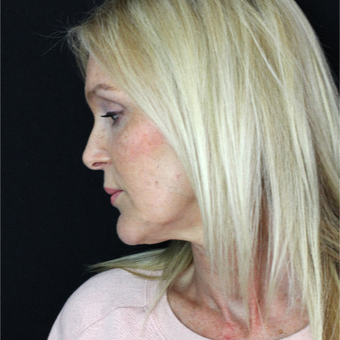 45-54 year old woman treated with Lower Face Lift before 2877982