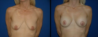 42 Year Old Woman - Breast Lift with Augmentation before 1094101