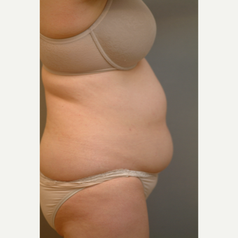 45-54 year old woman treated with Liposuction before 2977408
