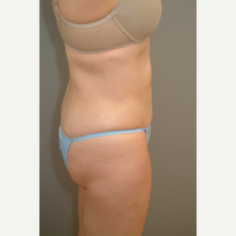 45-54 year old woman treated with Liposuction after 2977408