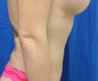 25-34 year old woman treated with Liposuction after 3188266