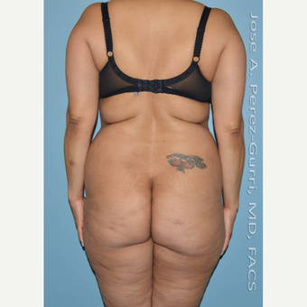 45-54 year old woman treated with Liposuction before 3691171