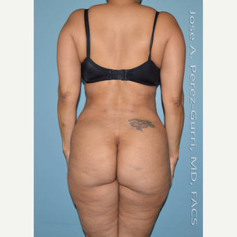 45-54 year old woman treated with Liposuction after 3691171