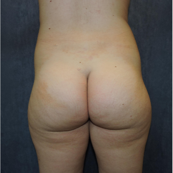 18-24 year old woman treated with Brazilian Butt Lift before 3685135