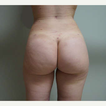 18-24 year old woman treated with Brazilian Butt Lift after 3685135