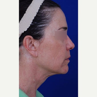 45-54 year old woman treated with Neck Lift before 1984640