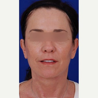 45-54 year old woman treated with Neck Lift 1984640