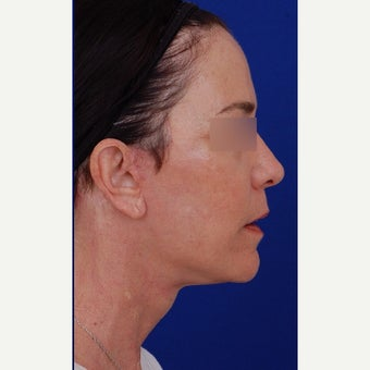 45-54 year old woman treated with Neck Lift after 1984640