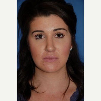 25-34 year old woman treated with Rhinoplasty after 3288891
