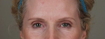55-64 year old woman treated with Brow Lift before 3658950
