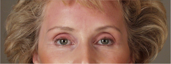 55-64 year old woman treated with Brow Lift after 3658950